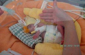 inkstų transplantacija