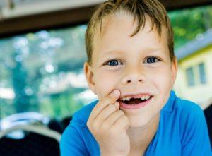 Vaikas išsimušė dantį. Suskubus dantuką galima įsodinti ir prigydyti!