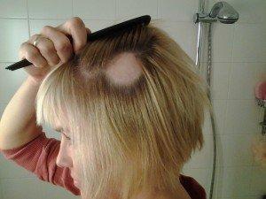 alopec