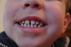 Vaikai negeria nei vyno, nei kavos, bet jų dantys patamsėja
