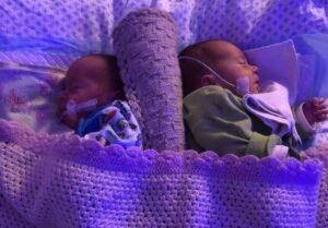 Stebuklingi dvynukai: pirmą kartą Lietuvoje sėkmingai išgydytas dvynių transfuzijos sindromas
