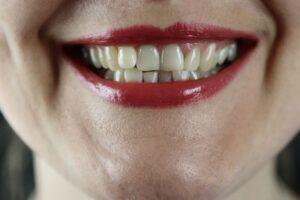 Nėštukės dantys